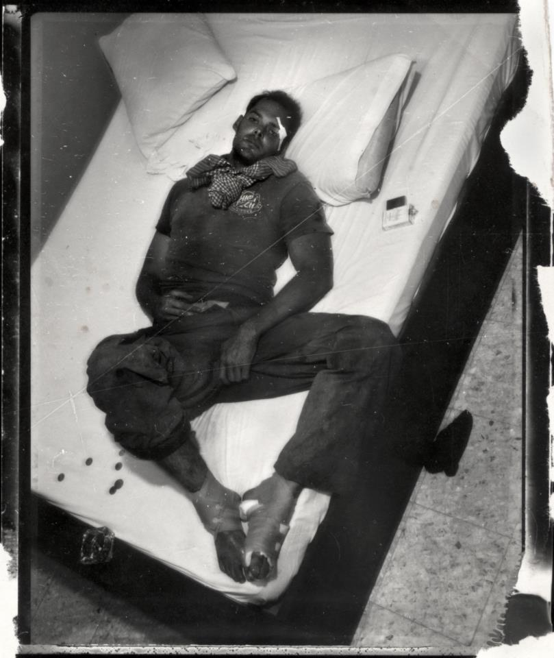 Photo: Philip Blenkinsop. I had numerous injuries, including blown eardrums, bones sticking out of my legs, shrapnel in my head torso, and legs, several broken bones, and a dislocated kidney. I also had what would be permanent brain damage